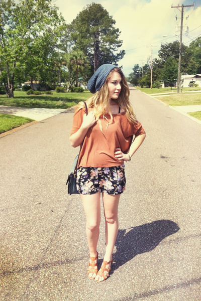 Floral-urban-outfitters-shorts_400