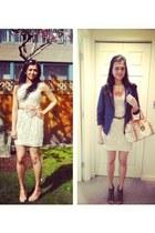 navy linen blazer Forever21 blazer - ivory lace Zara dress